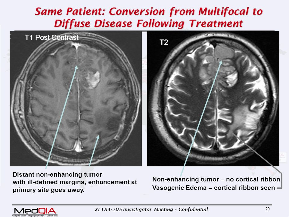Same Patient: Conversion from Multifocal to Diffuse Disease Following Treatment