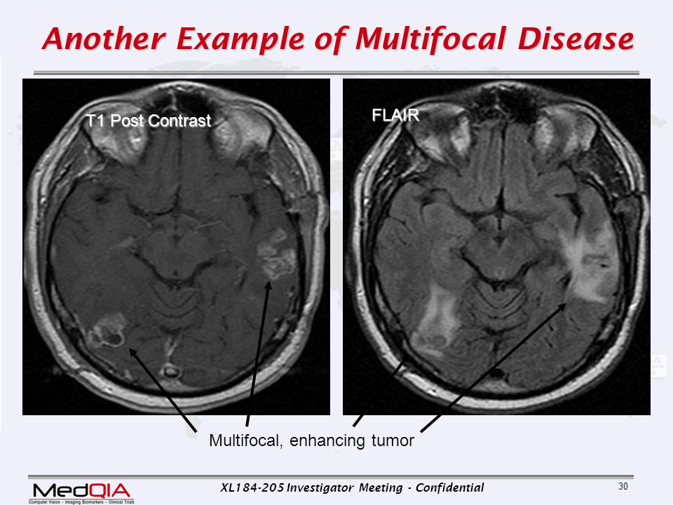 Another Example of Multifocal Disease