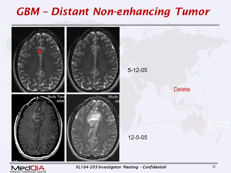 GBM – Distant Non-enhancing Tumor