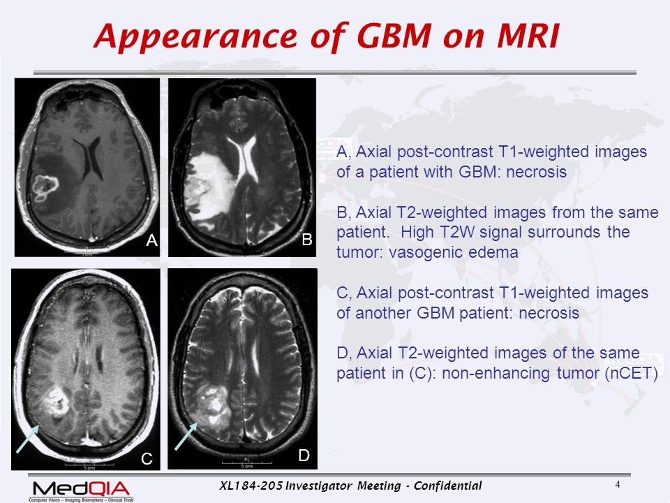 Appearance of GBM on MRI
