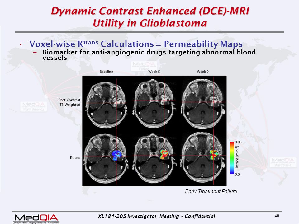 Dynamic Contrast Enhanced (DCE)-MRI Utility in Glioblastoma