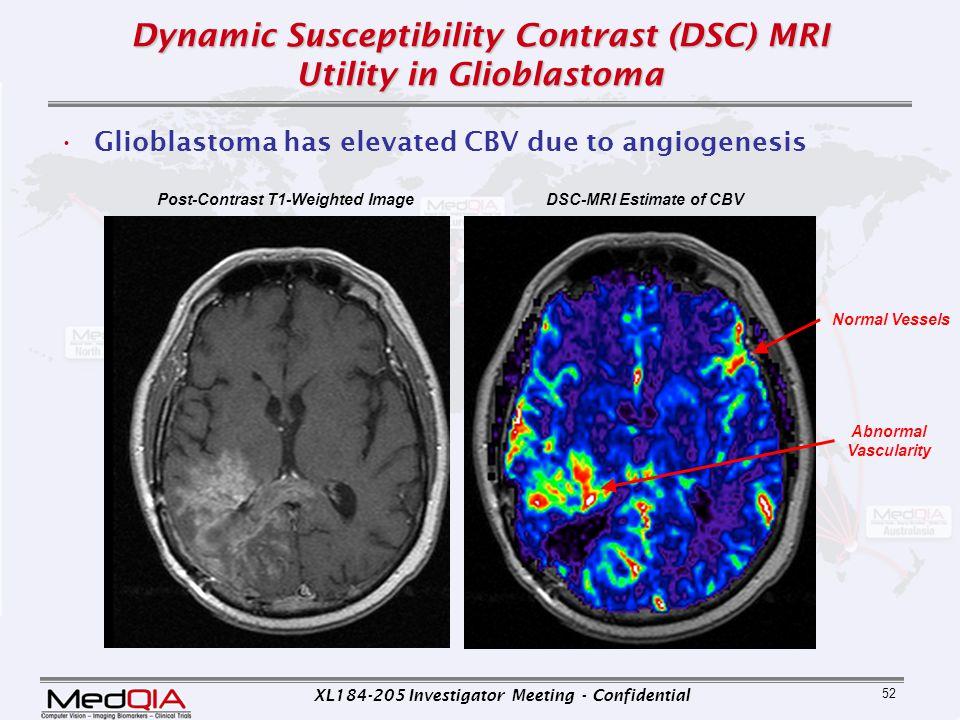 Dynamic Susceptibility Contrast (DSC) MRI Utility in Glioblastoma