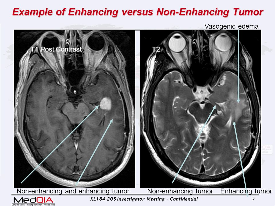 Example of Enhancing versus Non-Enhancing Tumor