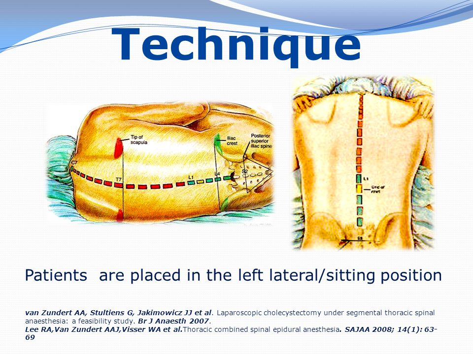 Technique Patients are placed in the left lateral/sitting position