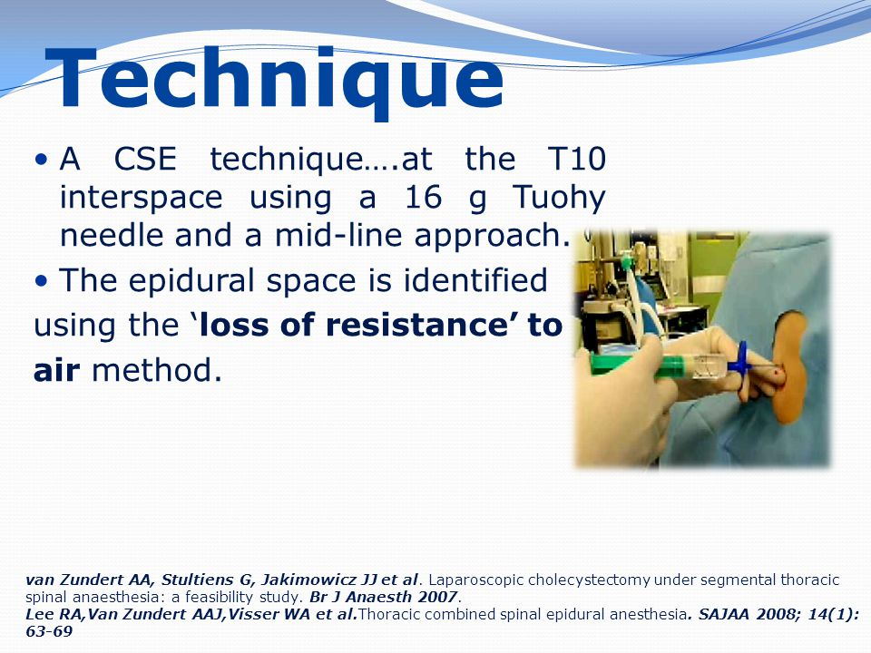 Technique A CSE technique….at the T10 interspace using a 16 g Tuohy needle and a mid-line approach.