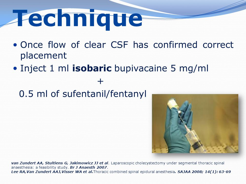 Technique Once flow of clear CSF has confirmed correct placement