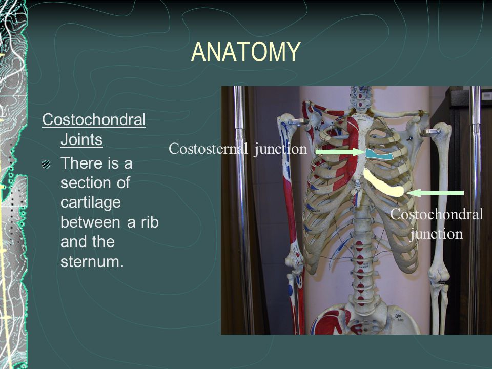 ANATOMY Costochondral Joints