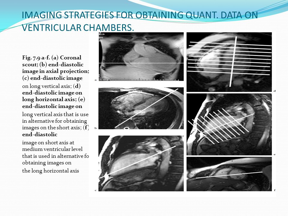 IMAGING STRATEGIES FOR OBTAINING QUANT. DATA ON VENTRICULAR CHAMBERS.