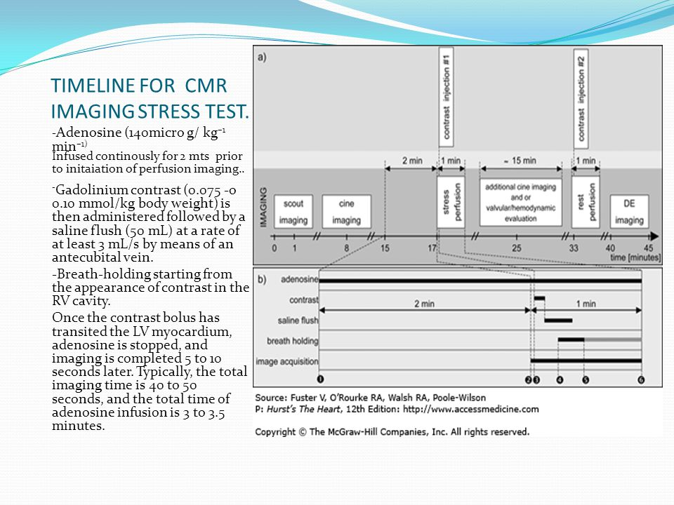 TIMELINE FOR CMR IMAGING STRESS TEST.