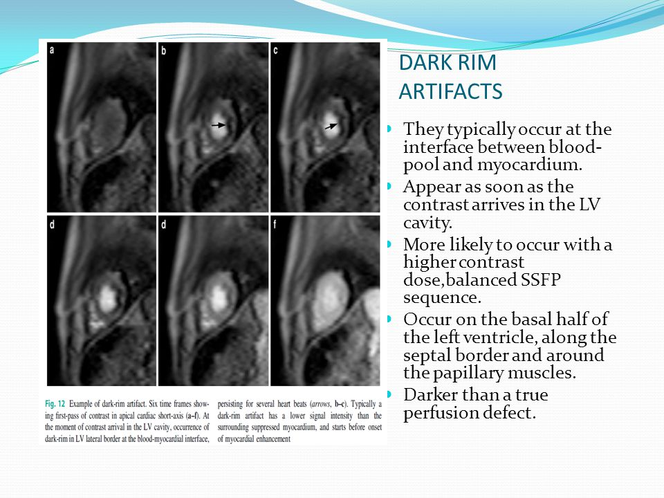 DARK RIM ARTIFACTS They typically occur at the interface between blood-pool and myocardium. Appear as soon as the contrast arrives in the LV cavity.