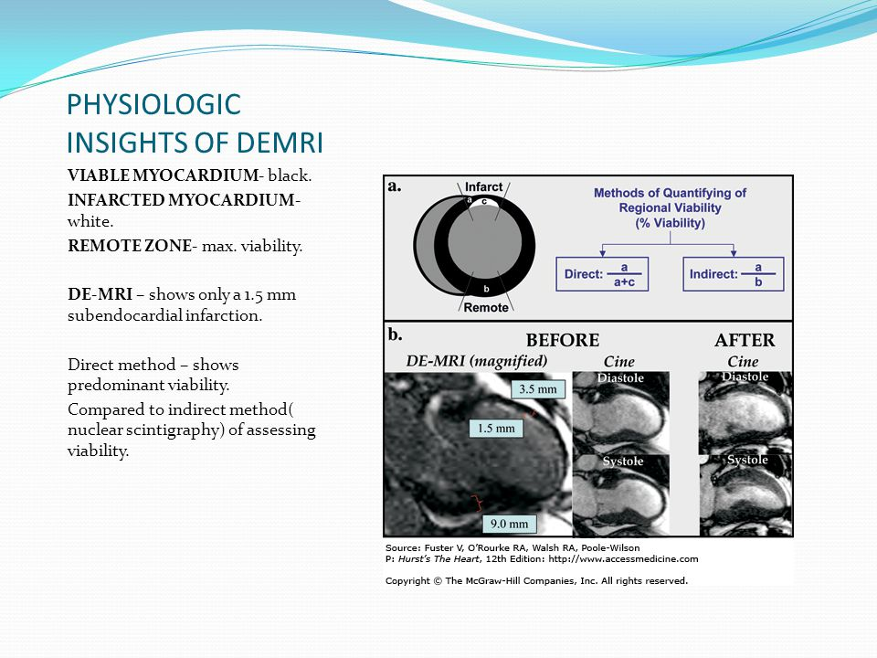 PHYSIOLOGIC INSIGHTS OF DEMRI