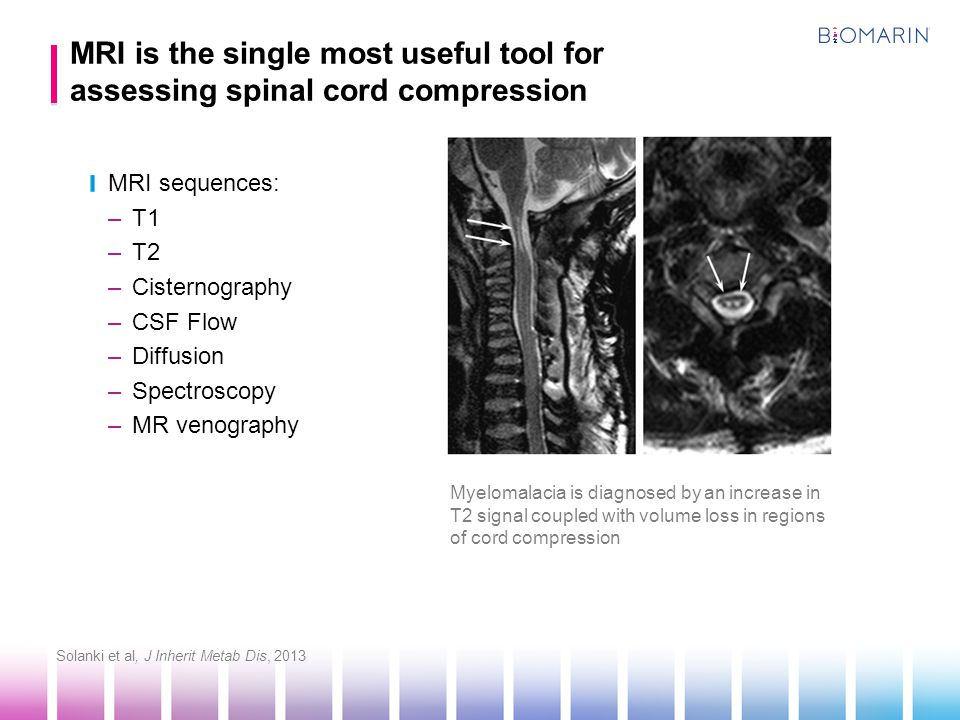 MRI is the single most useful tool for assessing spinal cord compression