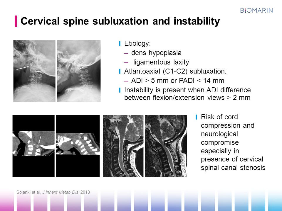 Cervical spine subluxation and instability