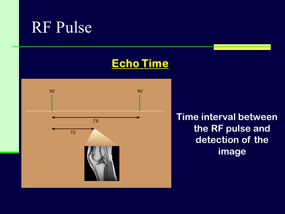 Time interval between the RF pulse and detection of the image