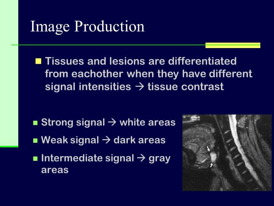 Image Production Tissues and lesions are differentiated from eachother when they have different signal intensities  tissue contrast.