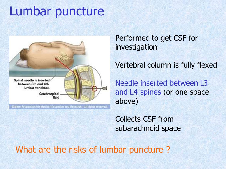 Lumbar puncture What are the risks of lumbar puncture