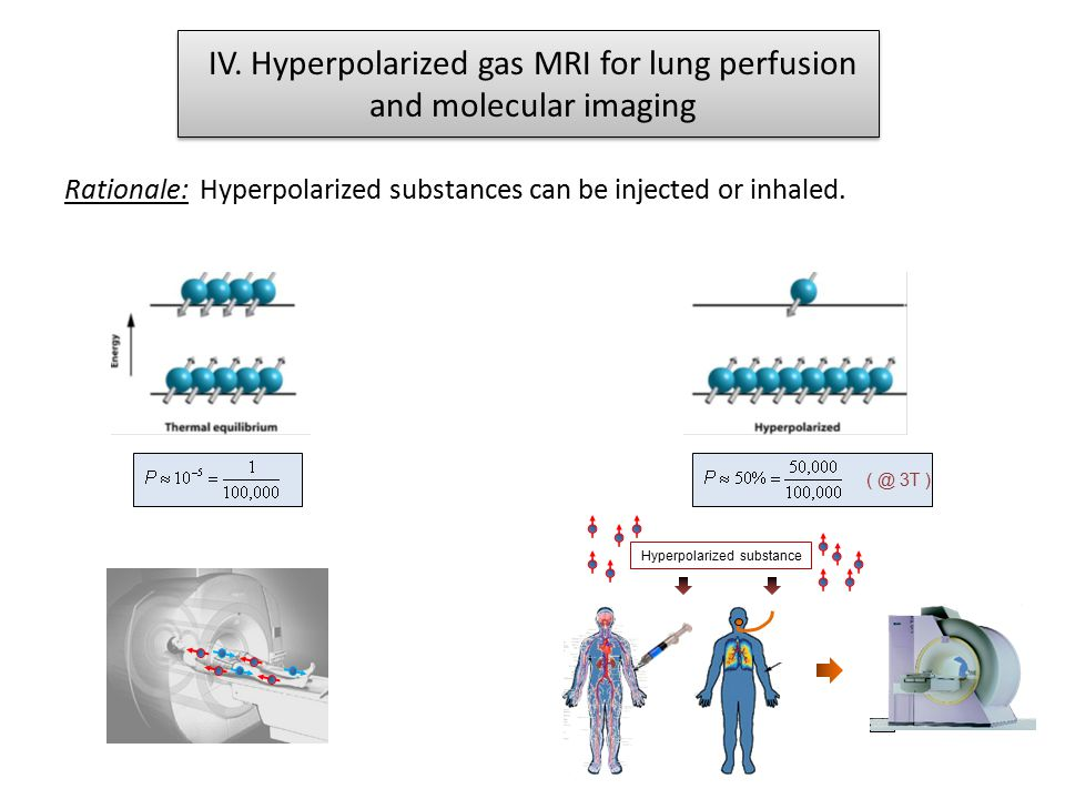 IV. Hyperpolarized gas MRI for lung perfusion