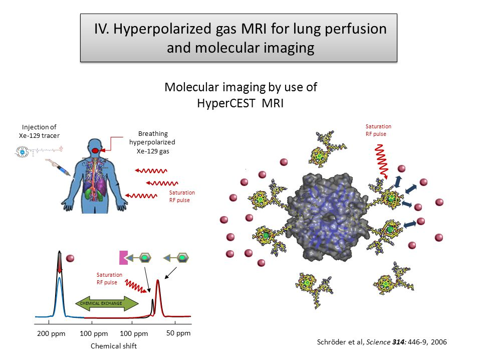 IV. Hyperpolarized gas MRI for lung perfusion and molecular imaging