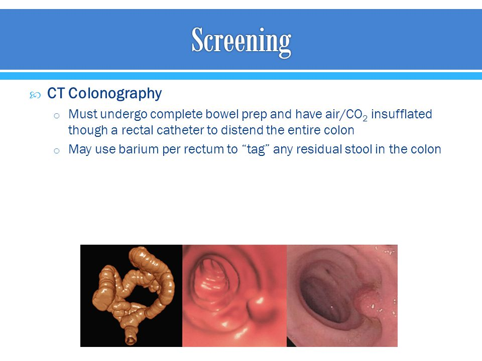 Screening CT Colonography