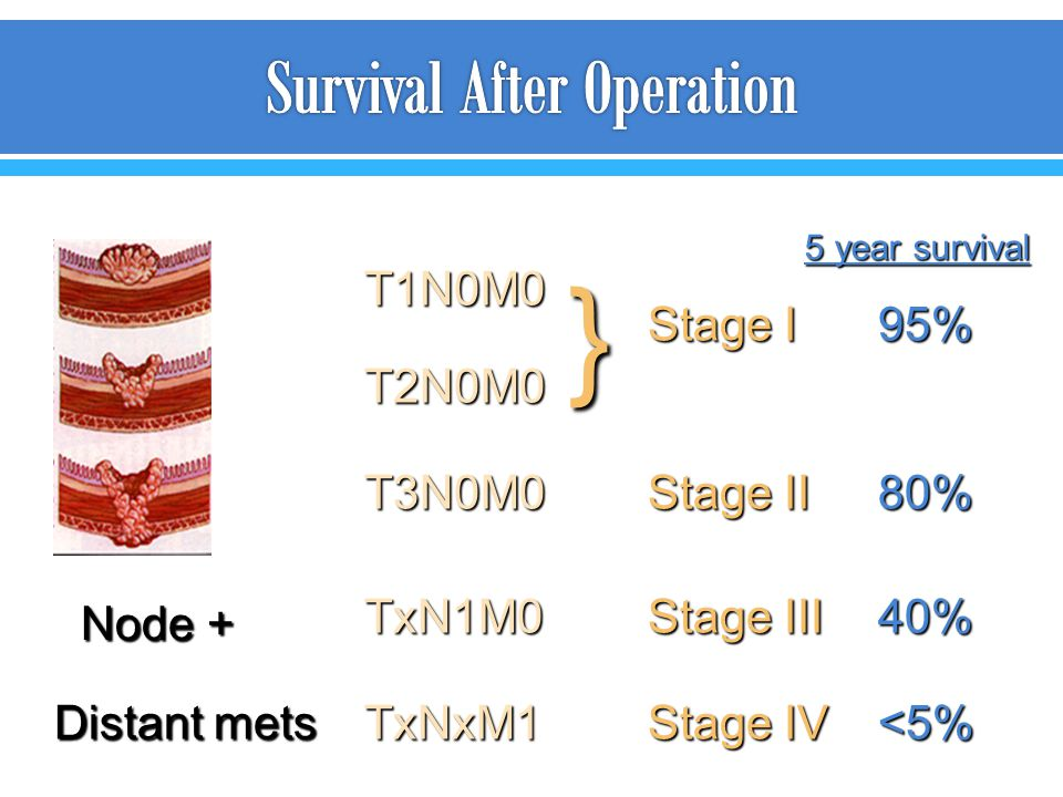 Survival After Operation