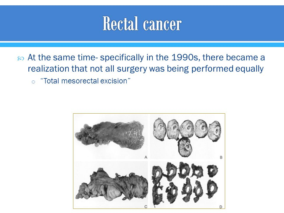 Rectal cancer At the same time- specifically in the 1990s, there became a realization that not all surgery was being performed equally.
