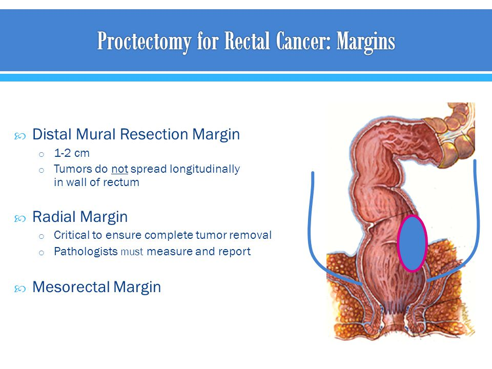 Proctectomy for Rectal Cancer: Margins