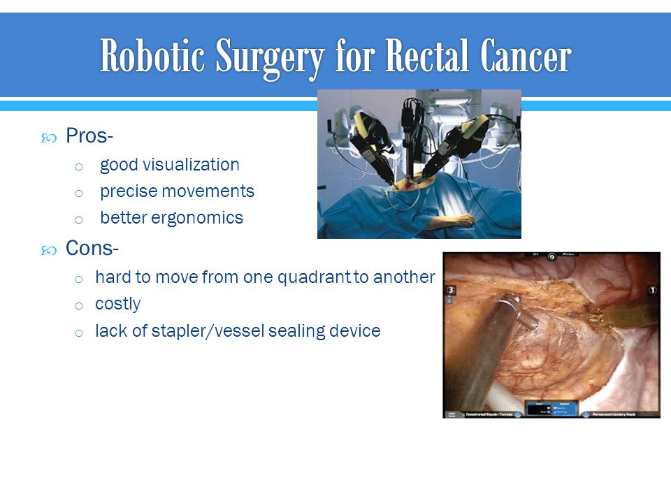 Robotic Surgery for Rectal Cancer