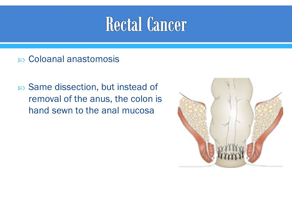 Rectal Cancer Coloanal anastomosis