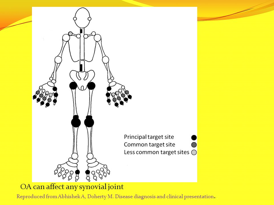 OA can affect any synovial joint