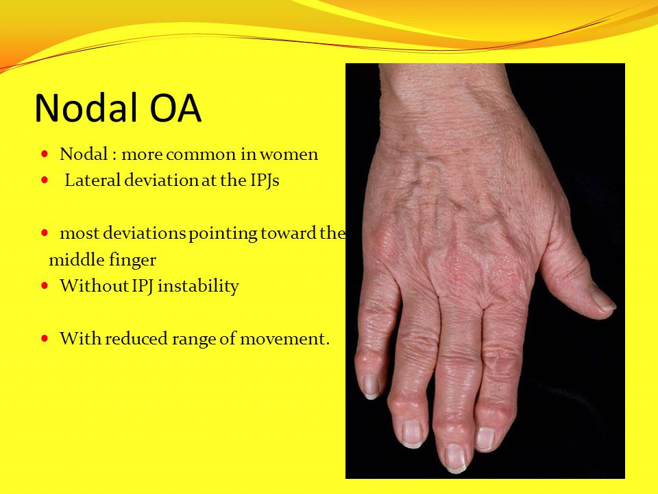 Nodal OA Nodal : more common in women Lateral deviation at the IPJs