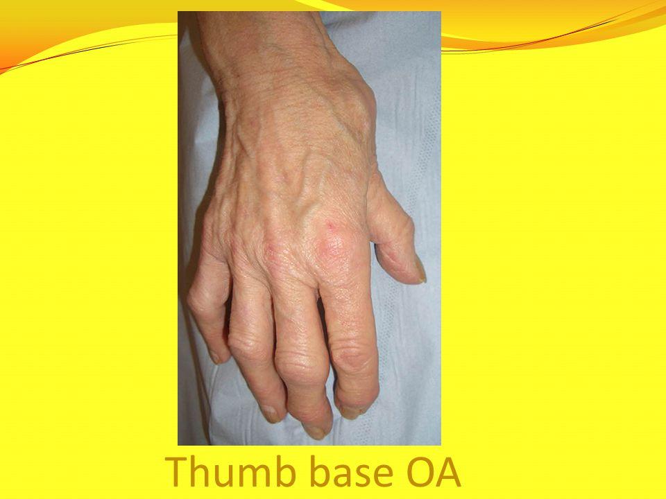 Thumb base OA
