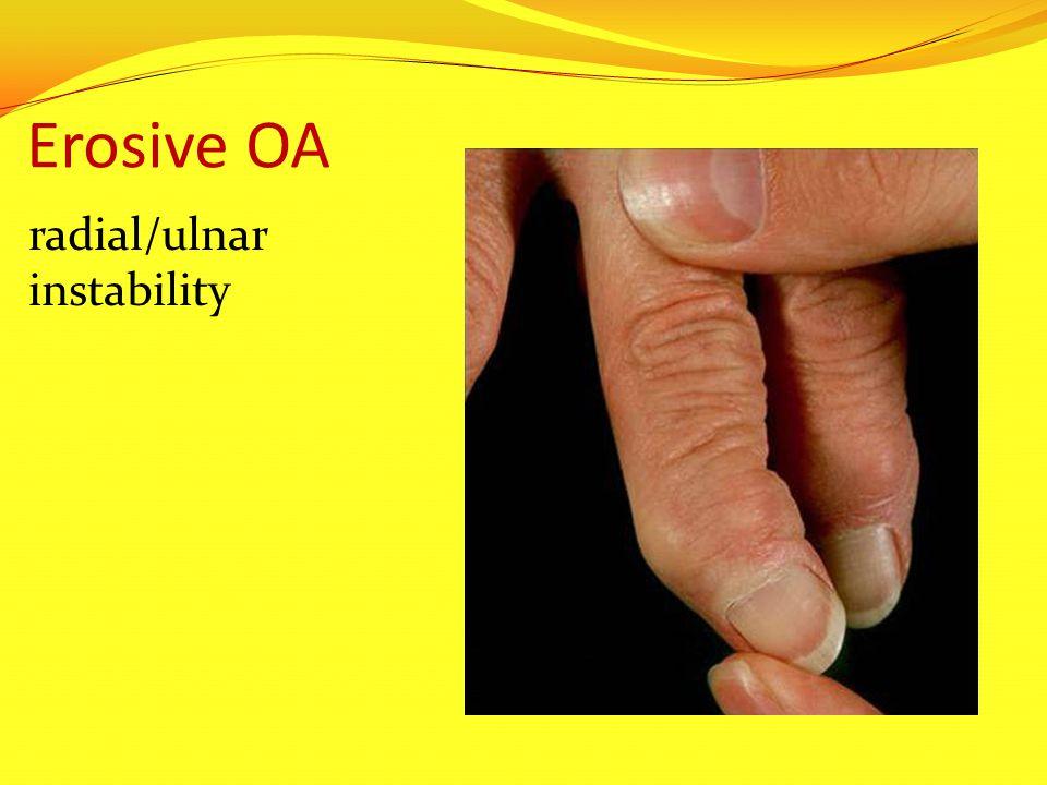 Erosive OA radial/ulnar instability