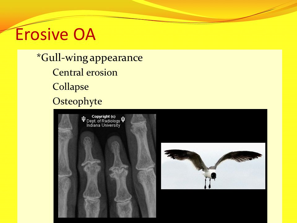 Erosive OA *Gull-wing appearance Central erosion Collapse Osteophyte