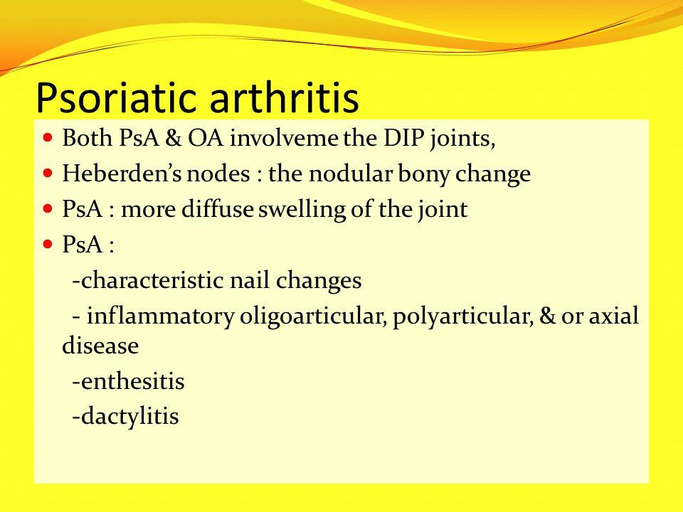 Psoriatic arthritis Both PsA & OA involveme the DIP joints,