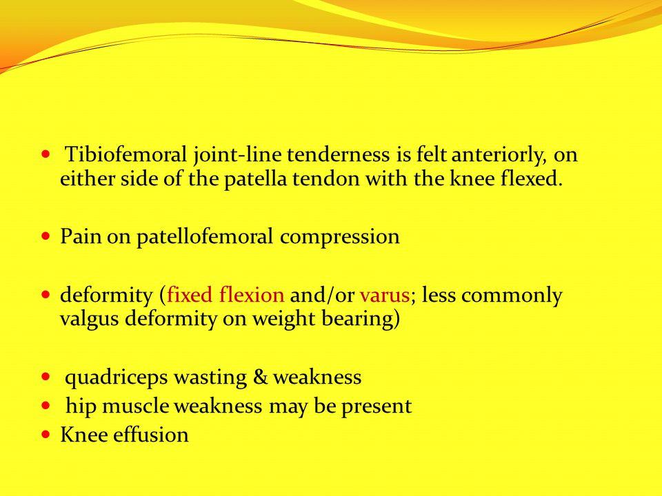 Pain on patellofemoral compression