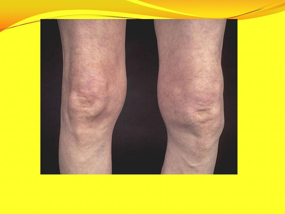 Unilateral knee OA: swollen left knee with varus and fixed flexion deformities in