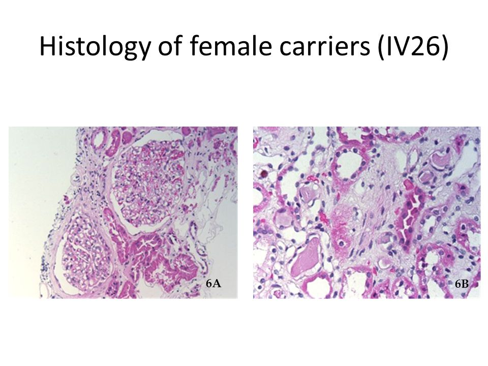 Histology of female carriers (IV26)