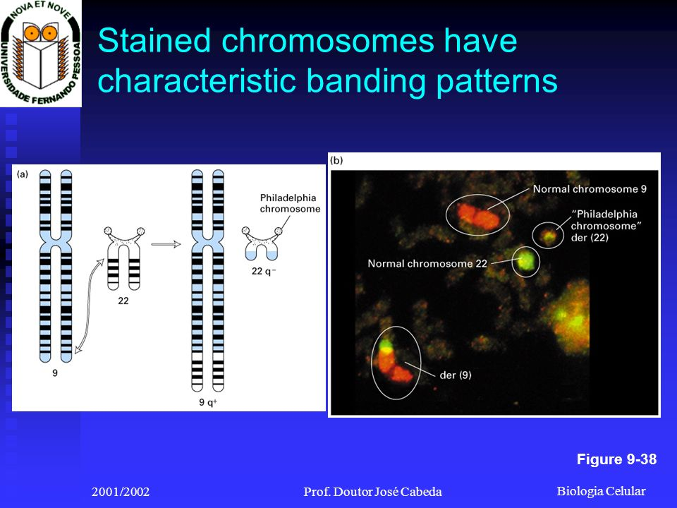 Stained chromosomes have characteristic banding patterns