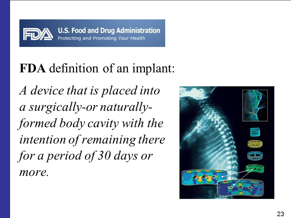 FDA definition of an implant: A device that is placed into