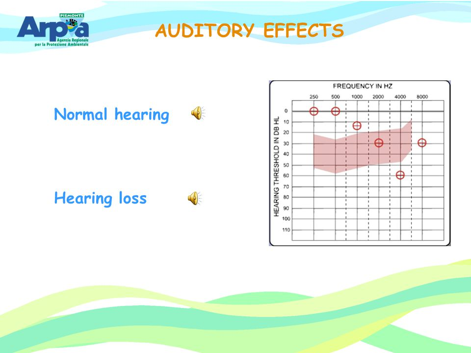 AUDITORY EFFECTS Normal hearing Hearing loss 33