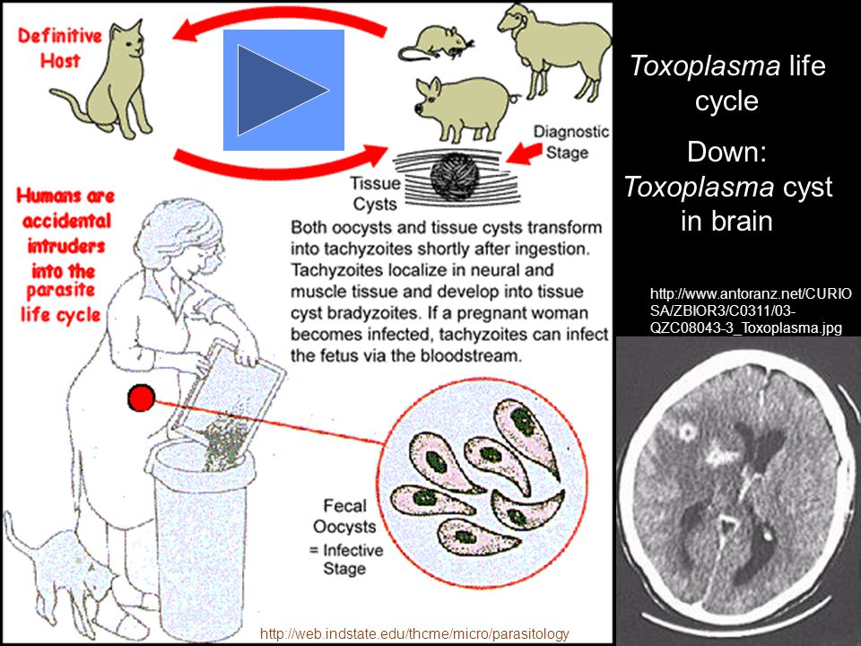 Down: Toxoplasma cyst in brain