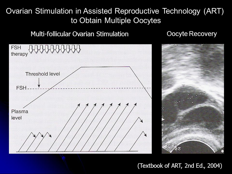 Ovarian Stimulation in Assisted Reproductive Technology (ART)