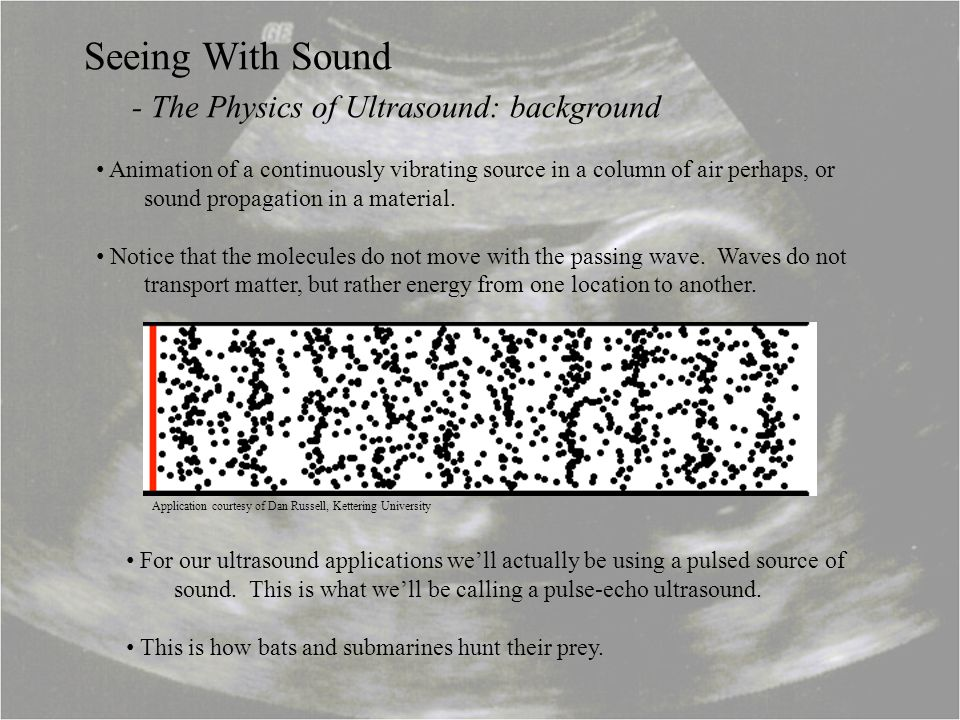 - The Physics of Ultrasound: background