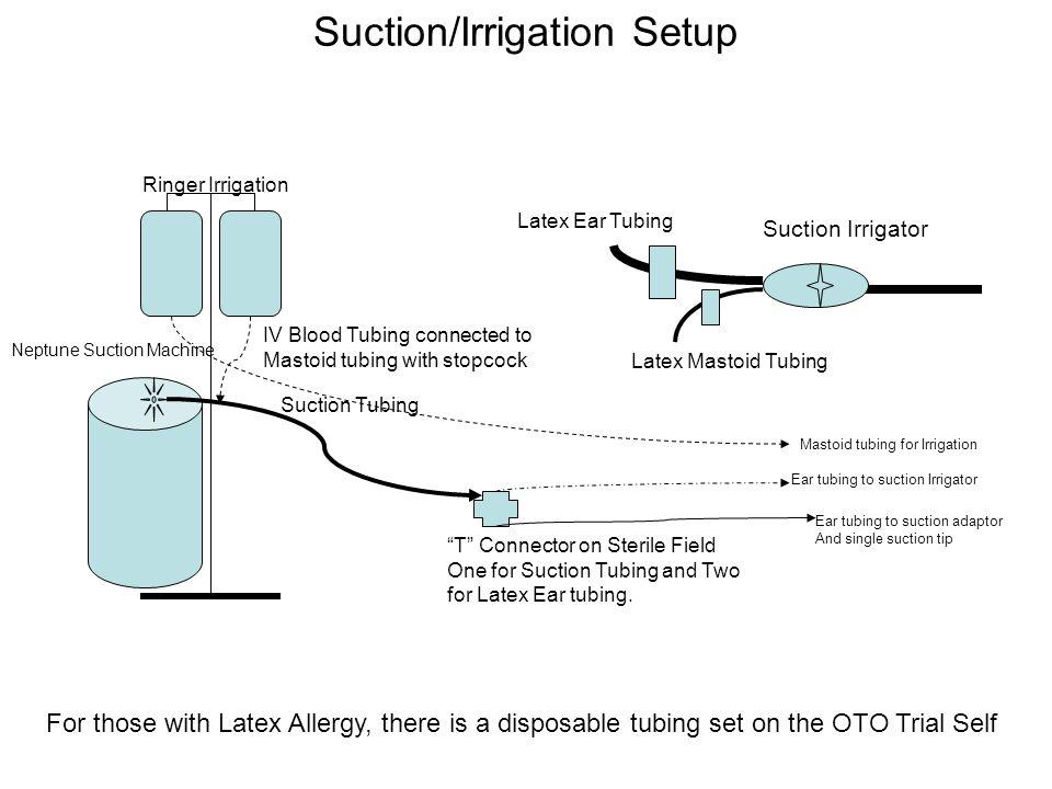 Suction/Irrigation Setup