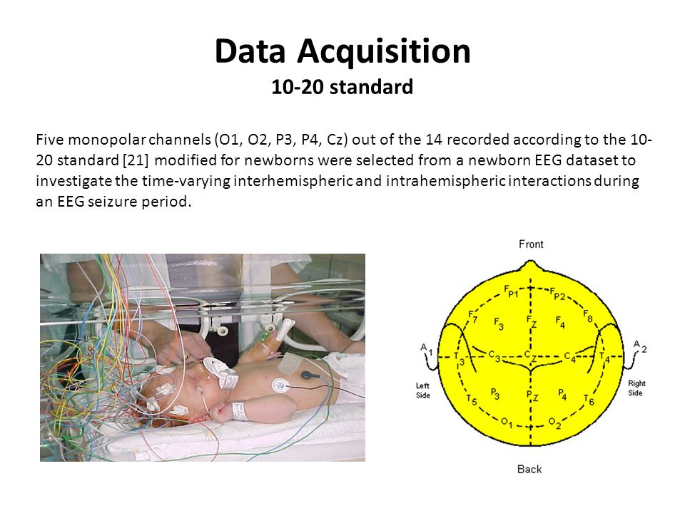 Data Acquisition 10-20 standard