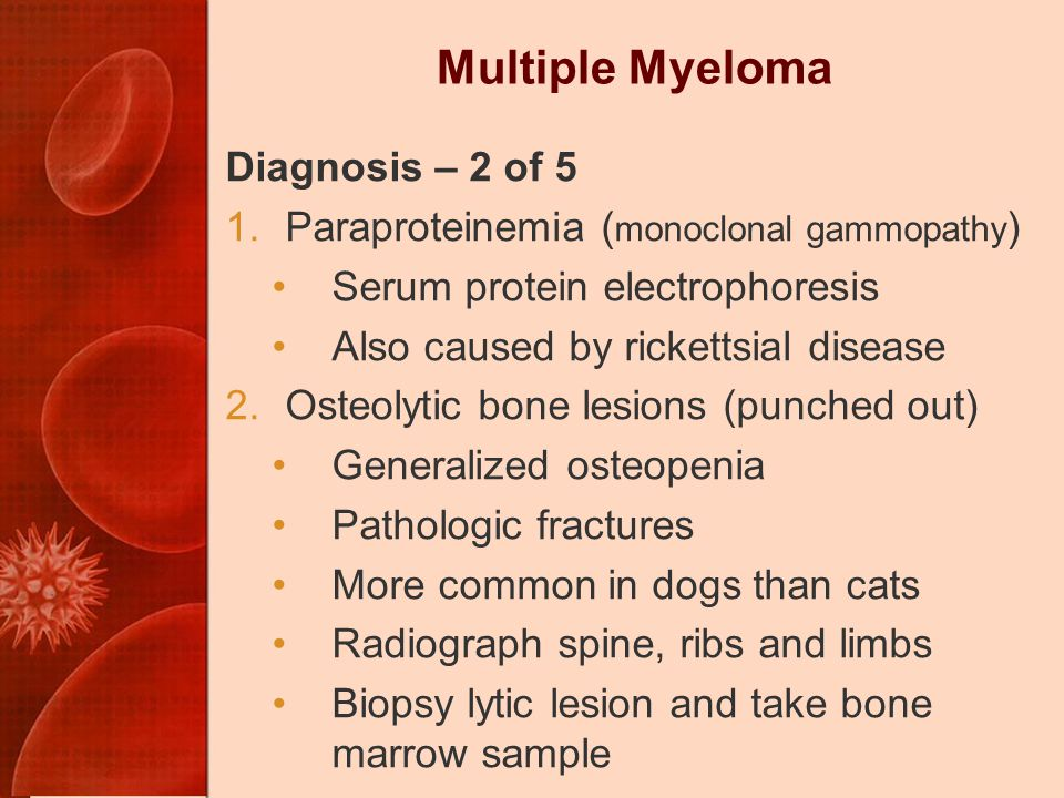 Multiple Myeloma Diagnosis – 2 of 5