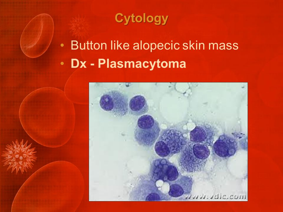 Cytology Button like alopecic skin mass Dx - Plasmacytoma