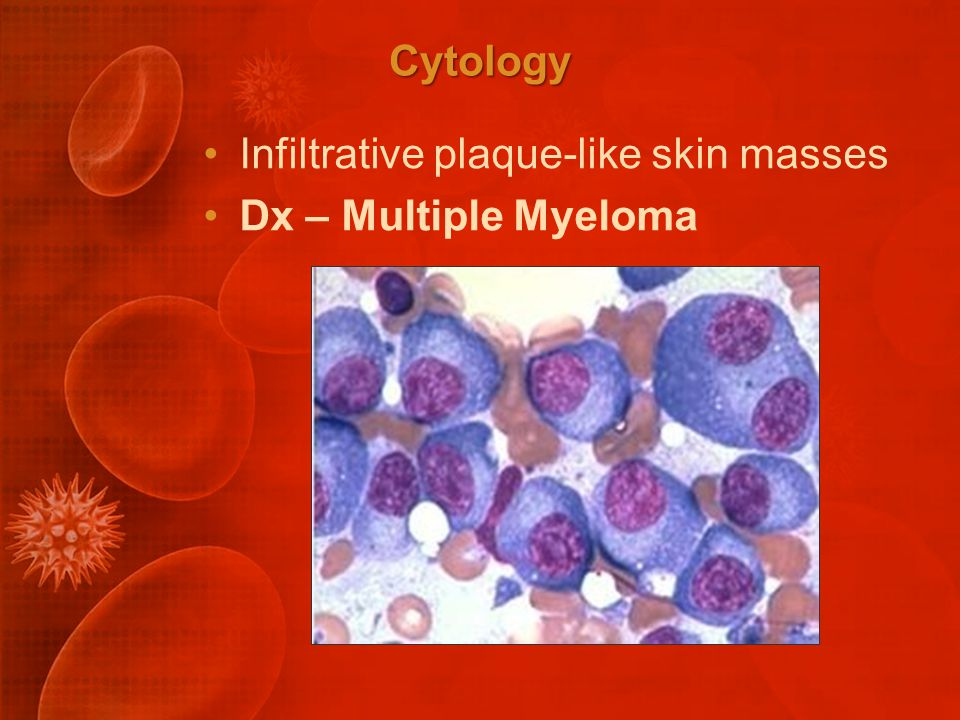 Cytology Infiltrative plaque-like skin masses Dx – Multiple Myeloma