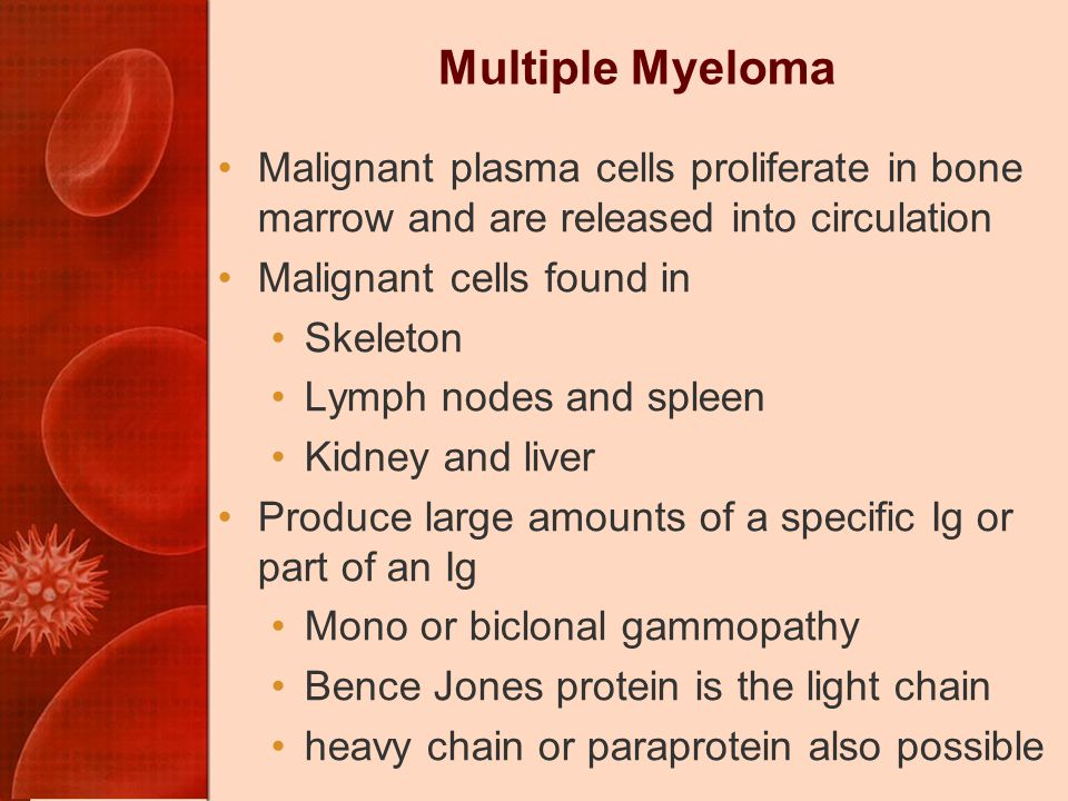 Multiple Myeloma Malignant plasma cells proliferate in bone marrow and are released into circulation.