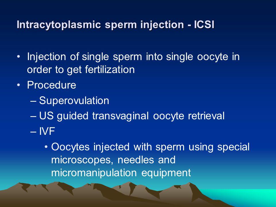 Intracytoplasmic sperm injection - ICSI
